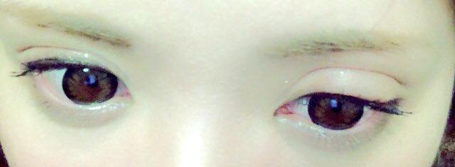 が 痒い 目