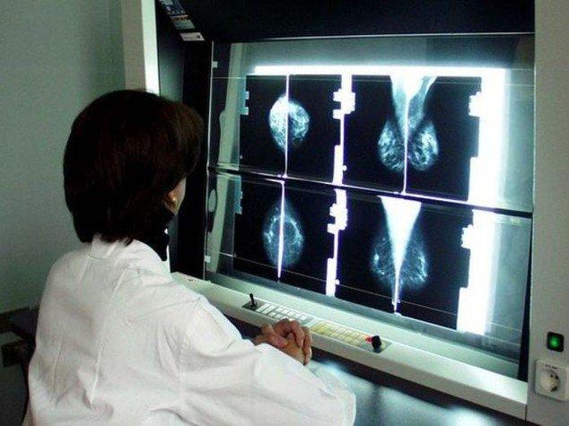 Tumore al seno: mix di farmaci riduce il cancro in 11 giorni