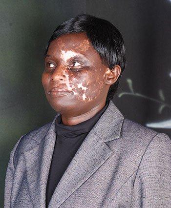 Had Is co t On vitiligo Https Michael health trccakjl9l t Not skindisorder Jackson co 0ediswbkfj