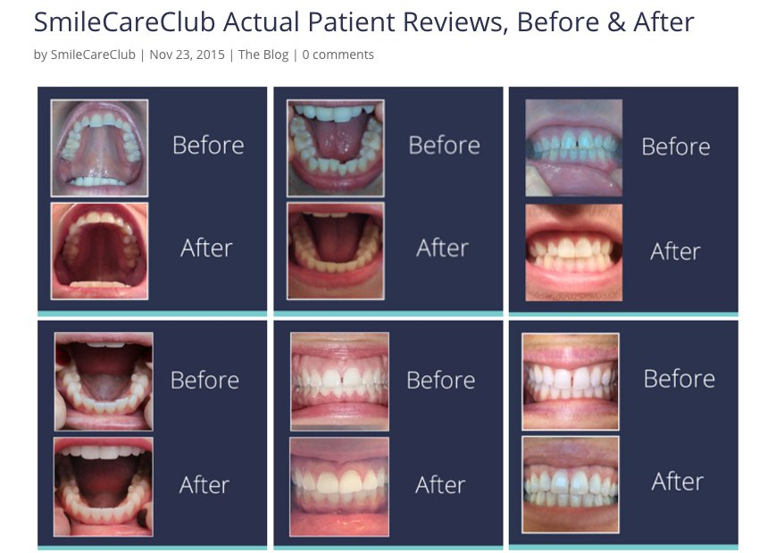 Smile Direct Club  Clear Aligners Series Comparison