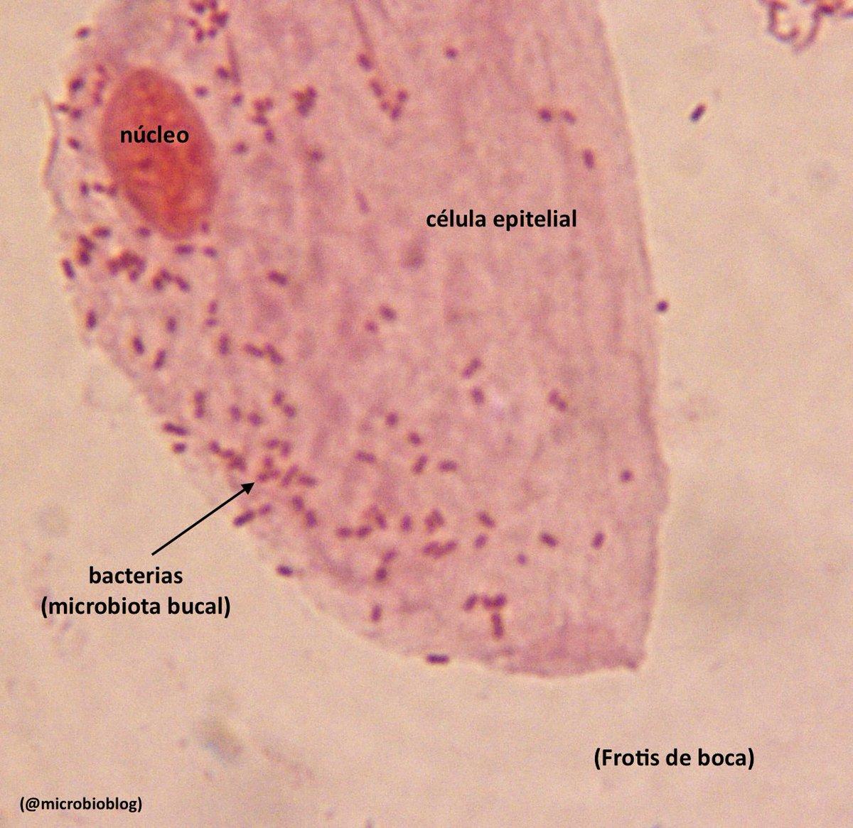 Frotis de boca: compara el tamaño entre una bacteria y una célula epitelial de la boca #microMOOCSEM https://t.co/wb2CY0HIJh