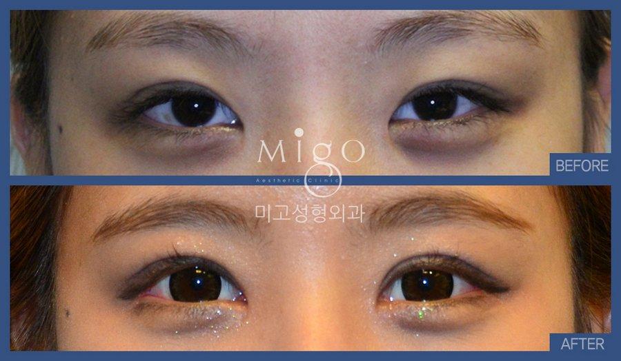 Migo Plastic Surgery on Twitter: