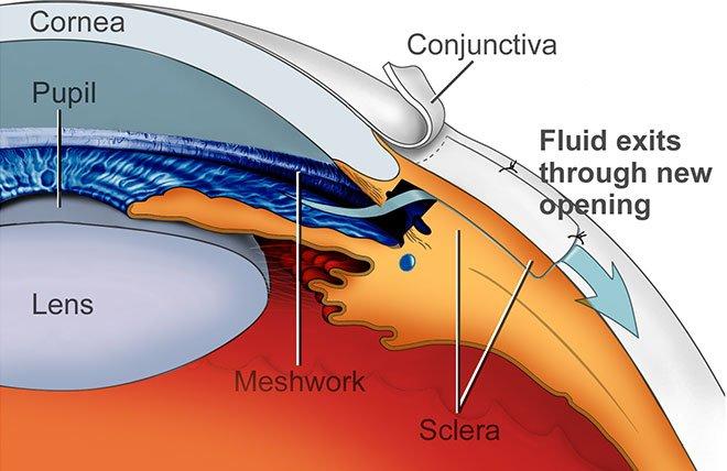 Resultado de imagen para trabeculectomía