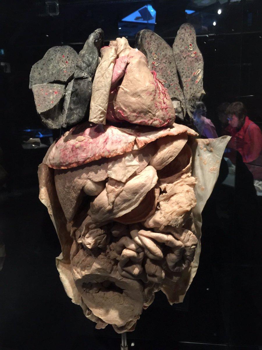 Shantanu On Twitter Real Human Organs Preserved In Viscera