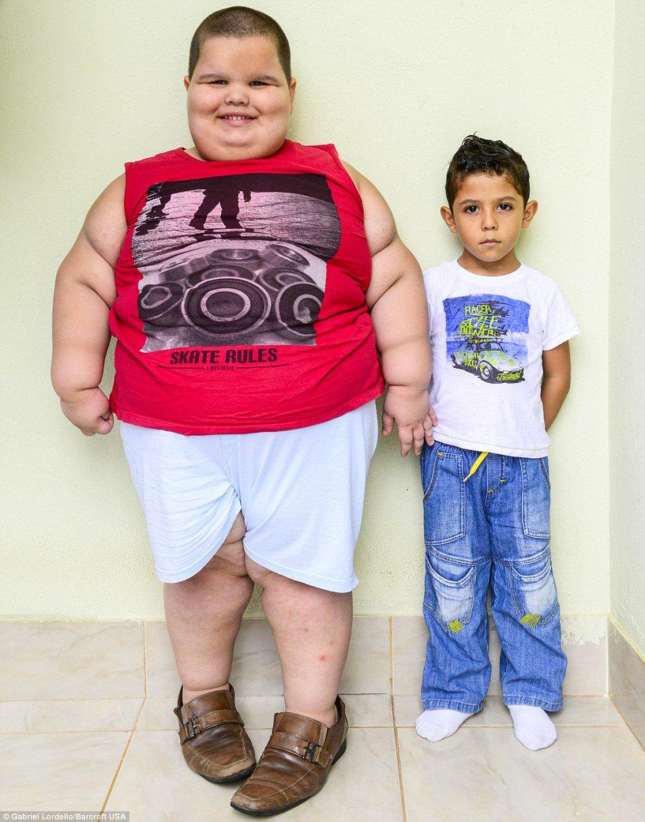 Ребенок до года похудел