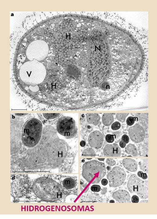 Protistas anaerobios: carecen de mitocondrias obtienen energía x fermentación en los hidrogenosomas #microMOOCSEM https://t.co/mGn0udoKwk