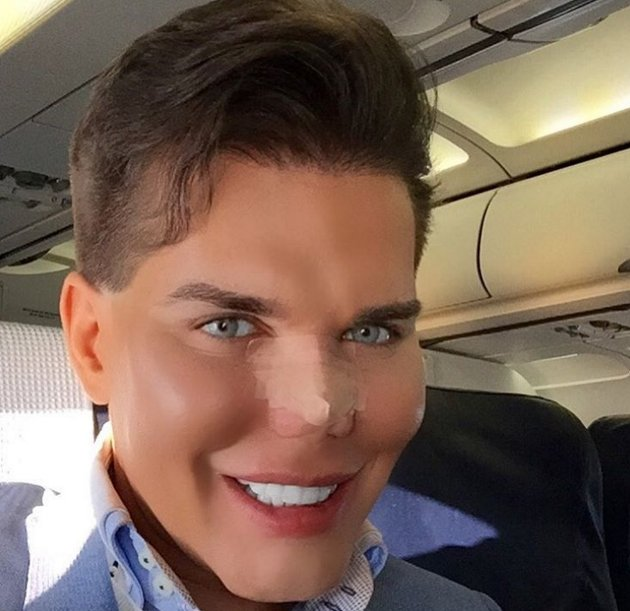 Man ken doll plastic surgery And have