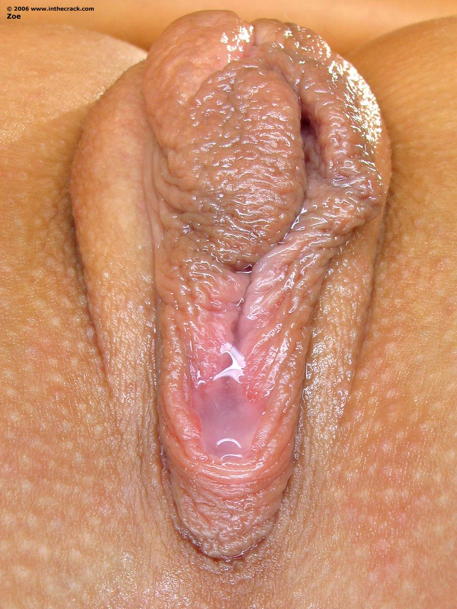 Swollen itchy vaginal lips