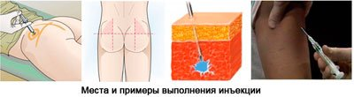 артрадол уколы инструкция по применению
