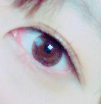 寝すぎて目が腫れる