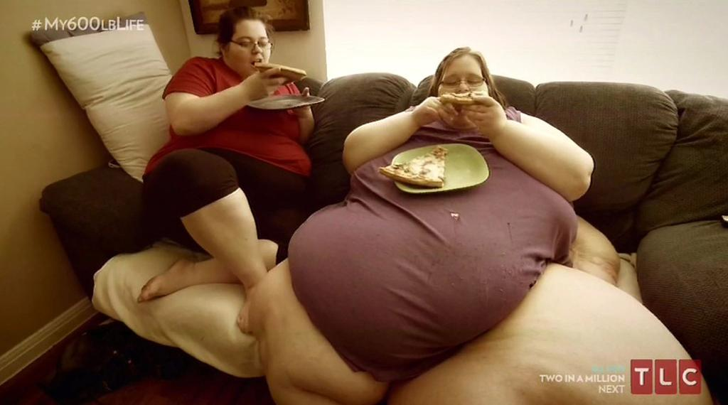 Worlds Fattest Woman Left With Deadly Infection After Losing 31 Stone - Scoopnestcom-8510