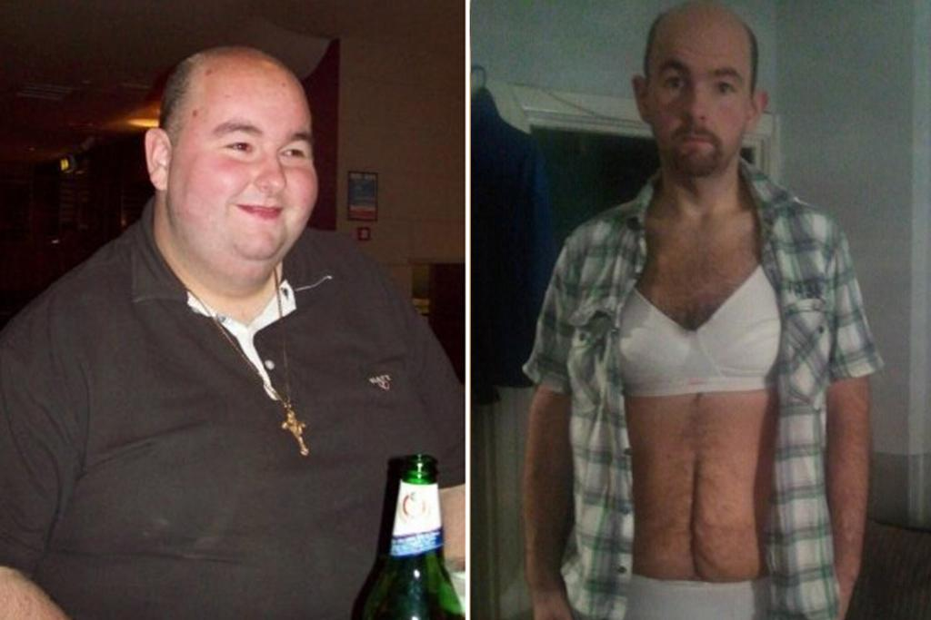 Man left with 38c moobs after losing 25 stone is forced to ...