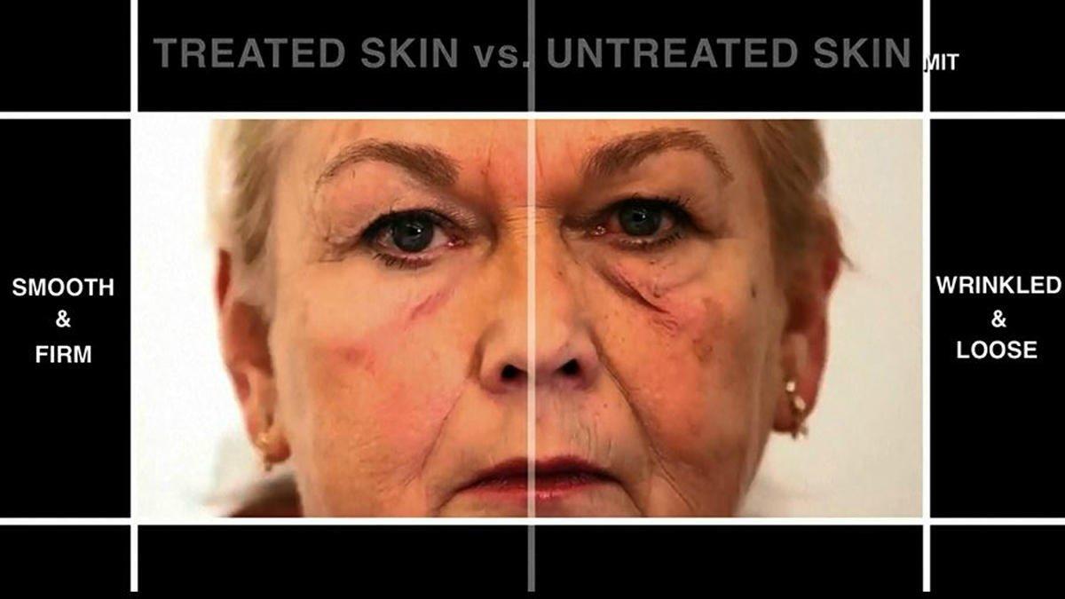 La crema gel che cancella le rughe del viso