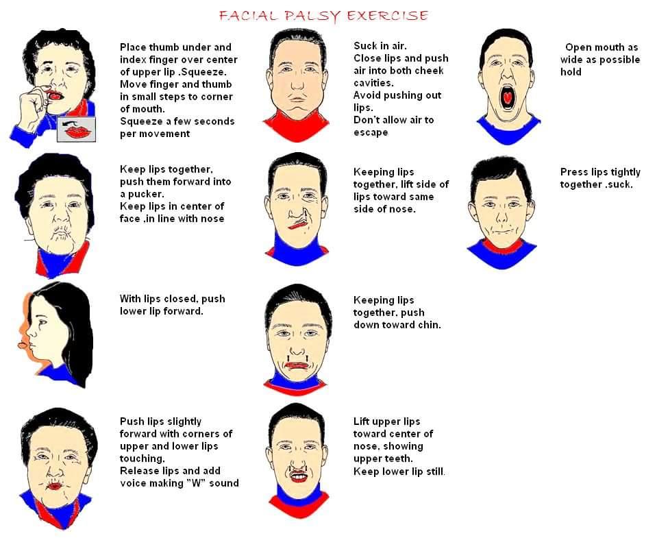 Facial paralysis exercise