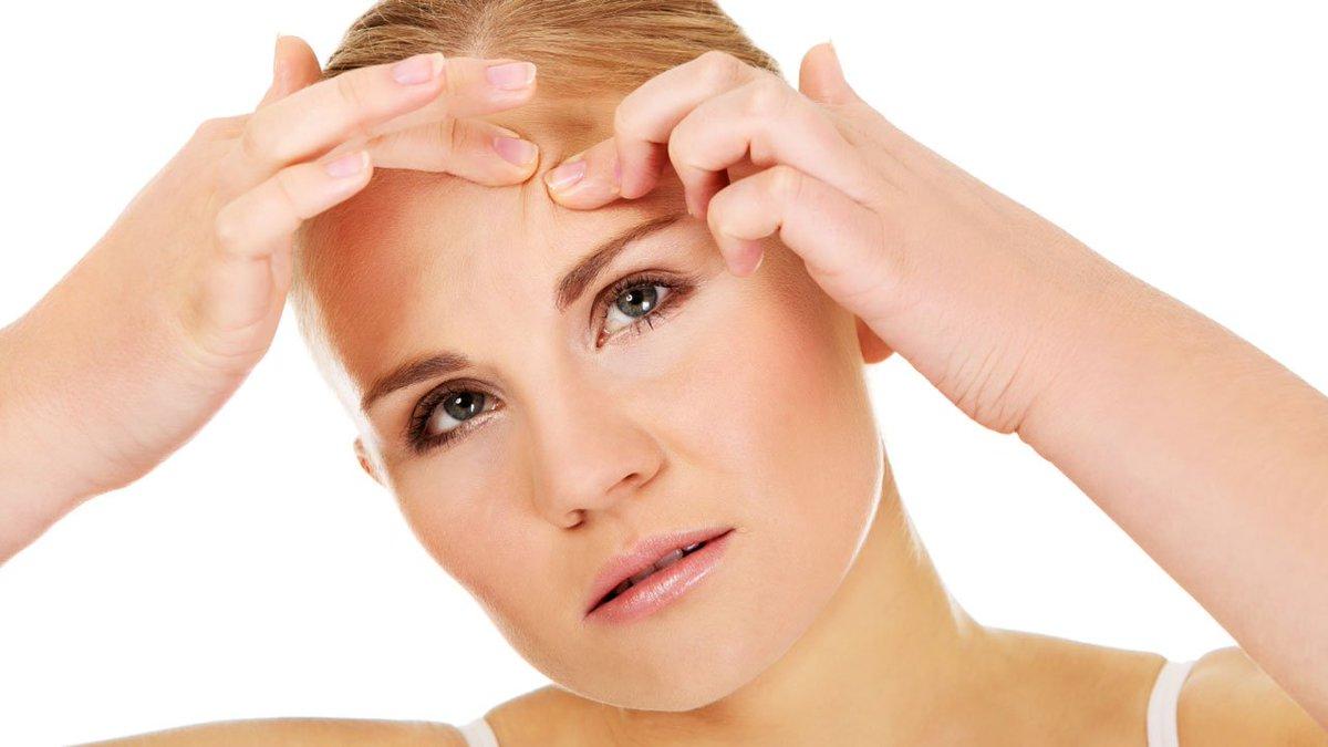 Evitar acne para que no comer