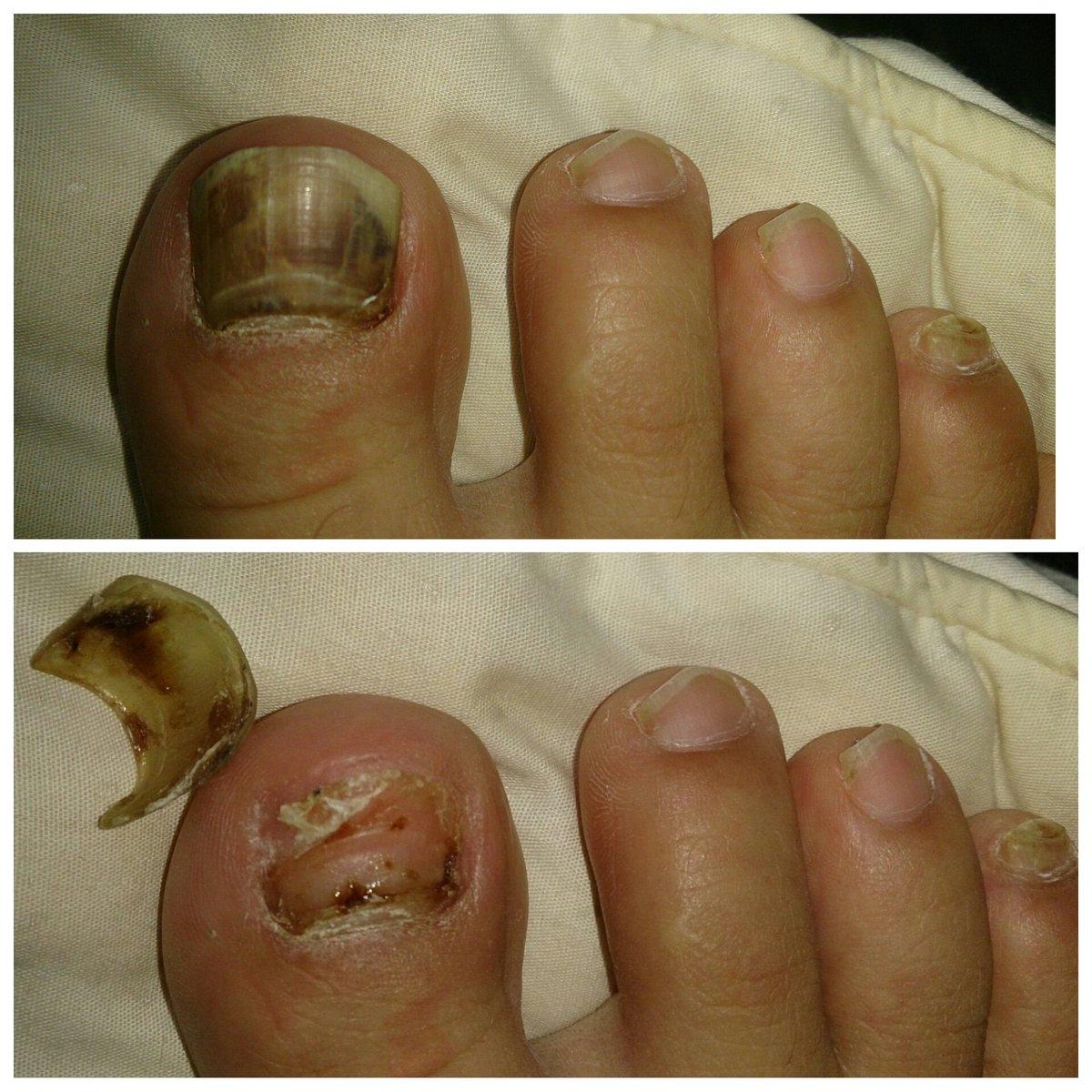 爪 内出血 剥がれる 爪をケガしたら内出血が!変色・はがれたときの治療と対処法は?