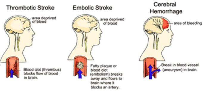 734738228616531968 on Thrombotic And Embolic Stroke