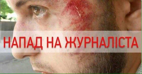 По факту нападения на журналистов в Харькове открыто уголовное производство, - Нацполиция - Цензор.НЕТ 8386