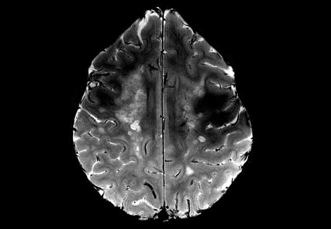 parkinsons disease oxford american neurology library