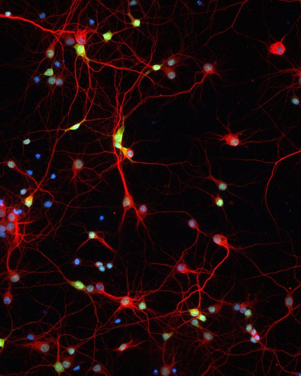wiringthebrain rt interstellate_ cortical neurons 11 days in culture dnmt3agreen map2red dnablue jordan brown daylabuab