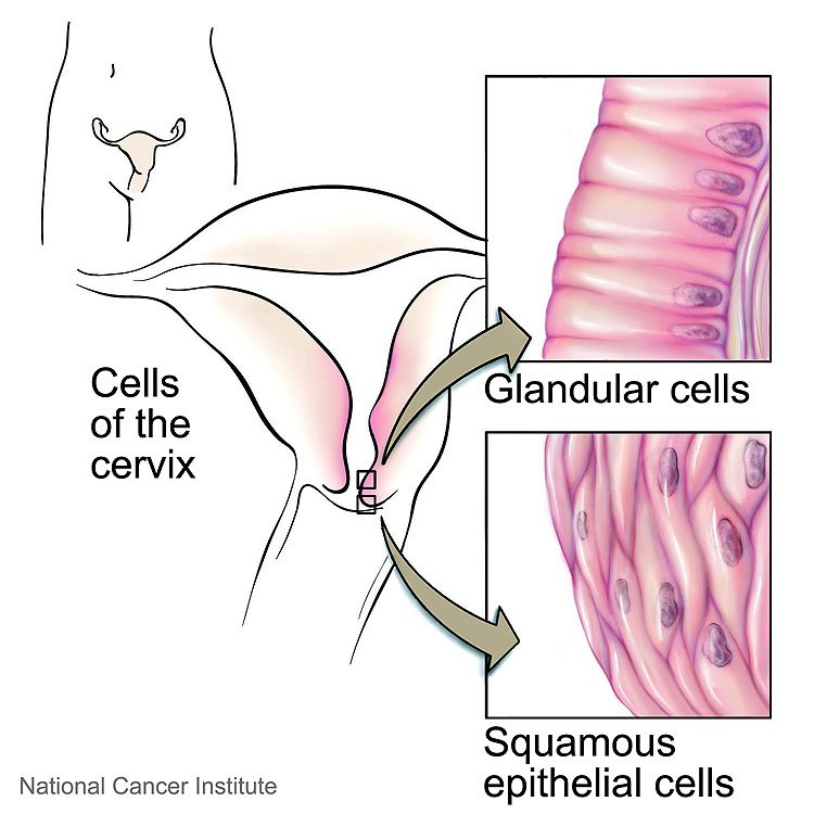 que significa ser hpv