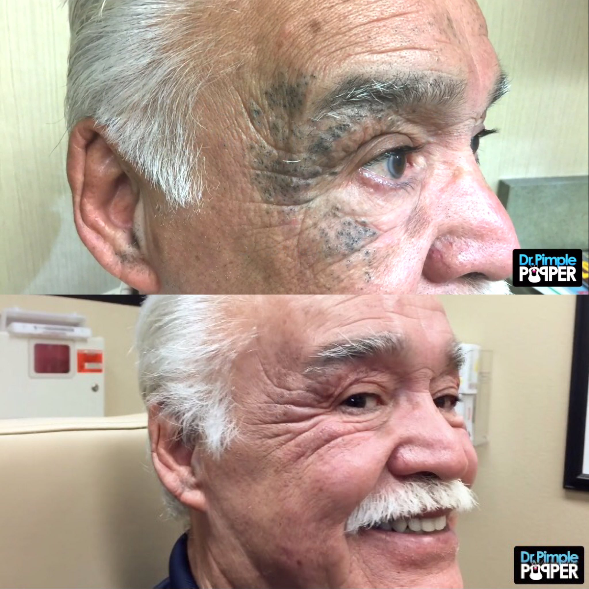 Dr Pimple Popper On Twitter Before After Of The Masked