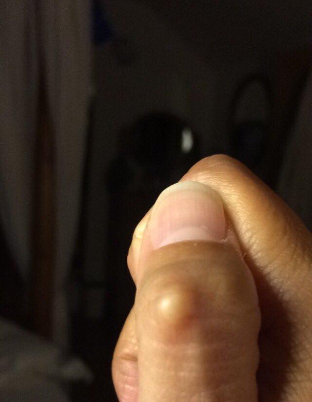 Nob on knuckle of thumb