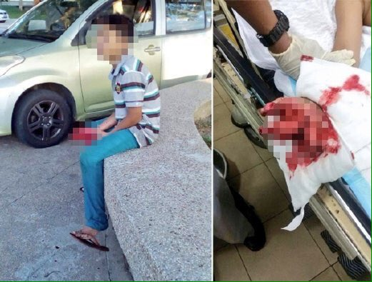 SEORANG kanak-kanak berumur 11 tahun putus tiga jari akibat bermain mercun di Kuala Kangsar, petang semalam. https://t.co/dPPy3gYWL1