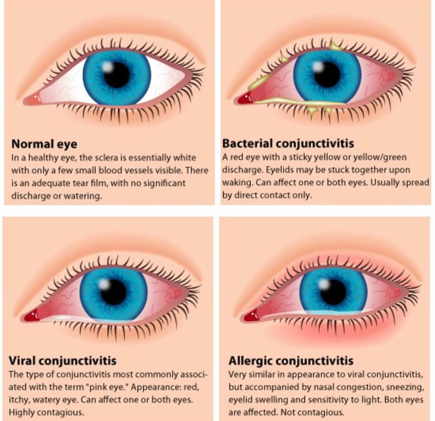 Eye Atlas On Twitter Quot Normal Healthy Eye Vs Viral