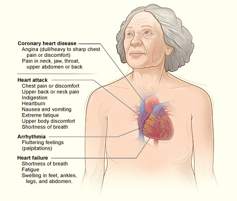 1 in 4 women in the U.S. die from heart disease, do you know the signs and symptoms? https://t.co/y9MmQx9mKn https://t.co/GJls2YHJd2