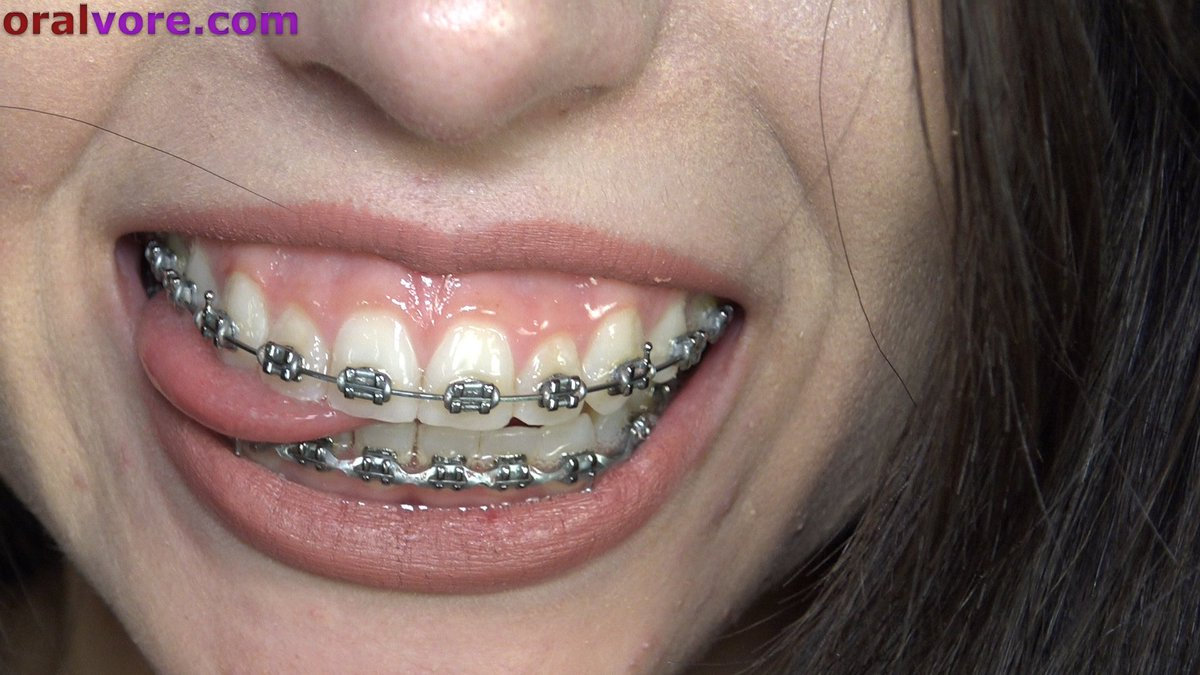 Cum on my braces