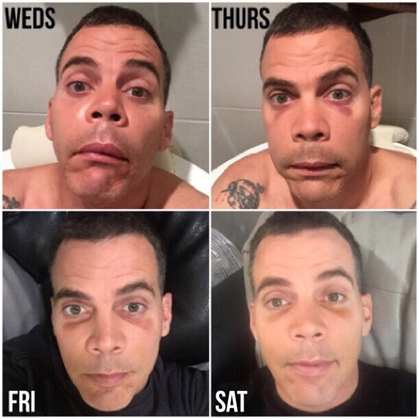 Steve O On Twitter Quot Floss Your Teeth Kids And Try Not
