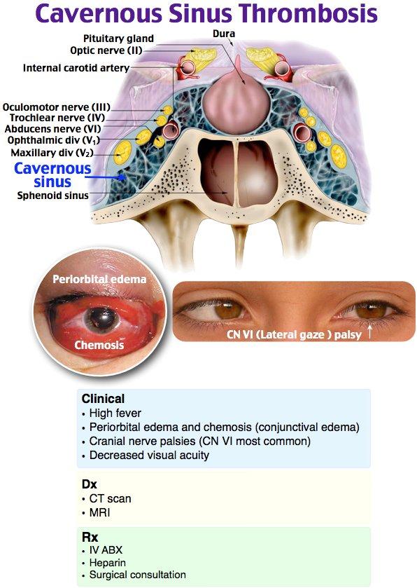 Denverem On Twitter Not All Sinusitis Is Created Equally Sphenoid