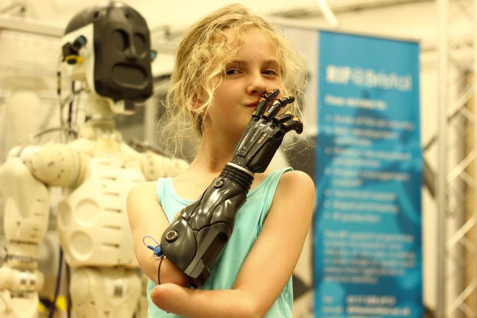 ".@deusex와 @OpenBionics의 콜라보레이션 ""아담 젠슨""의 팔 1호기(시제품)를 받게 된 열살 꼬마 Tilly. 아직 최종 개발 단계이며, 시판은 미정. https://t.co/wUHmoiF5Ao https://t.co/WBL03S2duw"