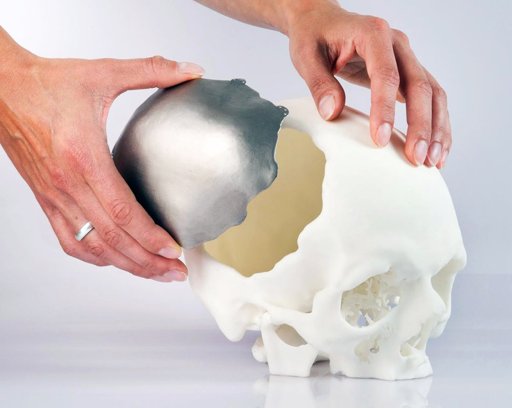 #3Dprinting in medical devices is growing exponentially part 2: implants. https://t.co/h5xgYsCEOW @RPES12 https://t.co/eoD5vcbPKO