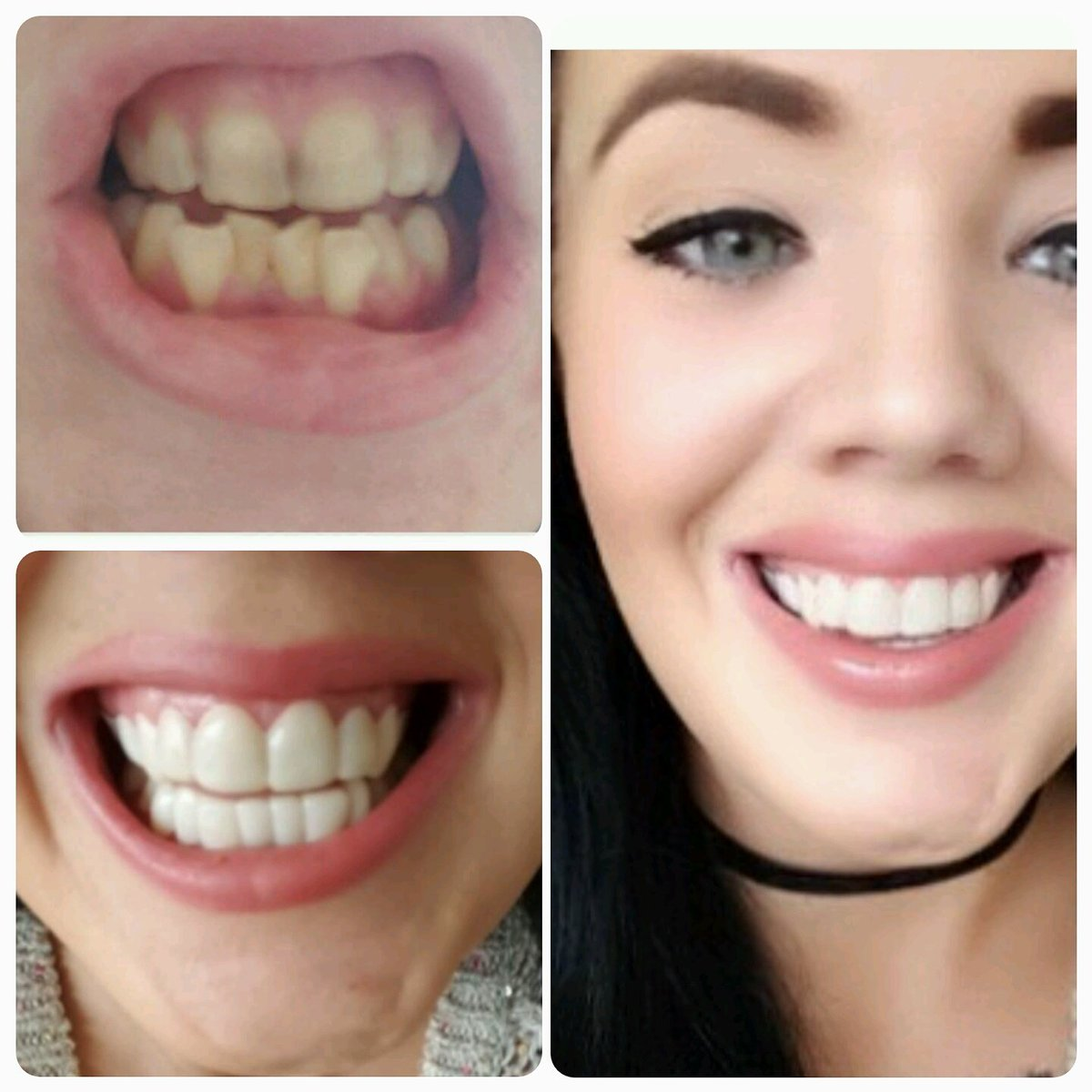 The Smile Experts Secretveneers Twitter