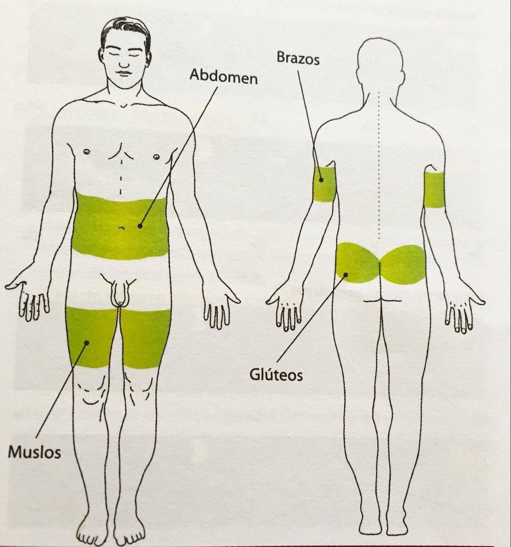 sitios de inyección de insulina y diabetes