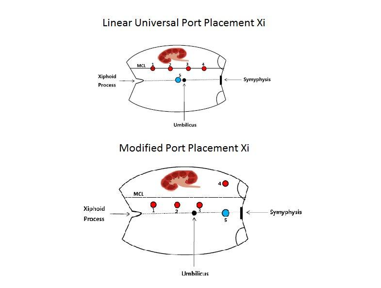 port placement