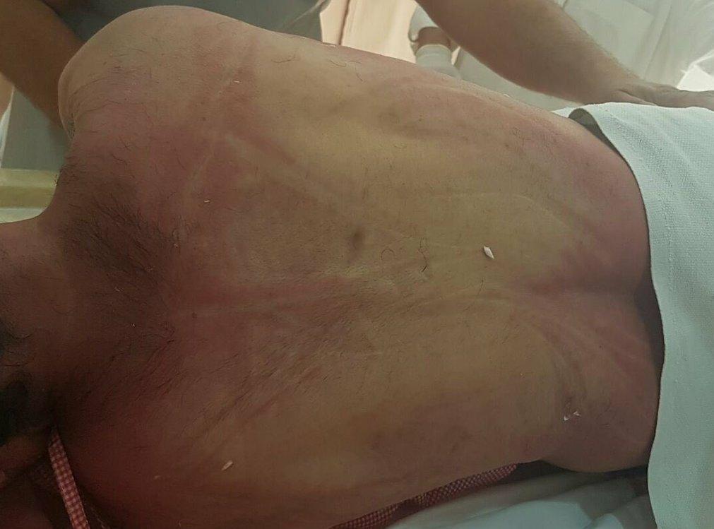 آثار سياط جلادي العصابة الخليفية المجرمة على ظهر #الشهيد_حسن_الحايكي تؤكد رواية الداخلية حول كون (الوفاة طبيعية ) https://t.co/O99EAGIzBf