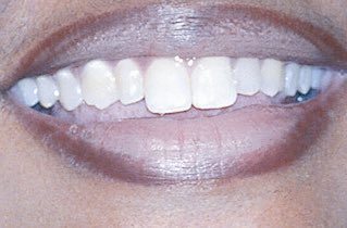 lil kim on twitter she s never gotten different teeth just