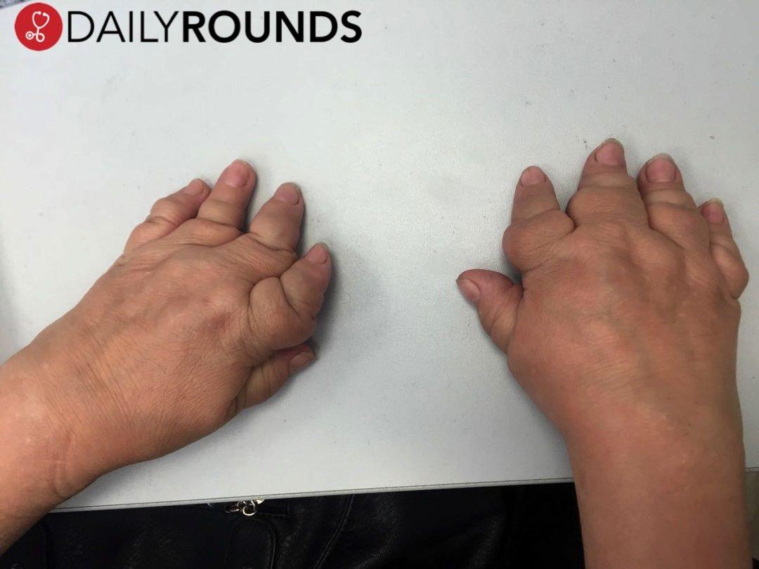 arthritismutilans hashtag on Twitter