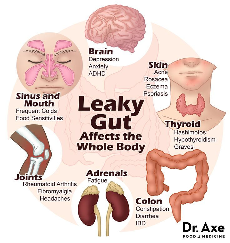 Do you have leaky gut? Keep an eye out for these signs #Digestion #Health #GutLove #LeakyInsides #Inflammation https://t.co/jHz6dDE1ZC