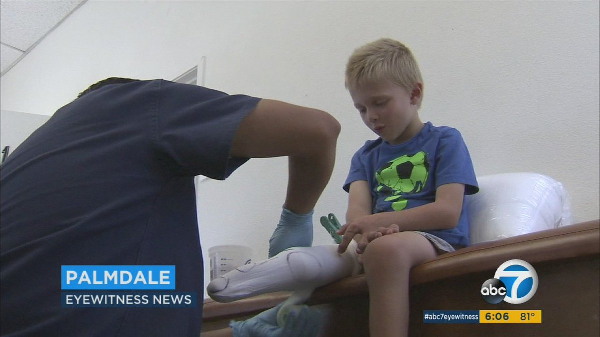 4-year-old Orange County boy to get replacement for stolen prosthetic leg
