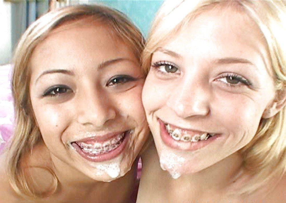 Girl braces cum