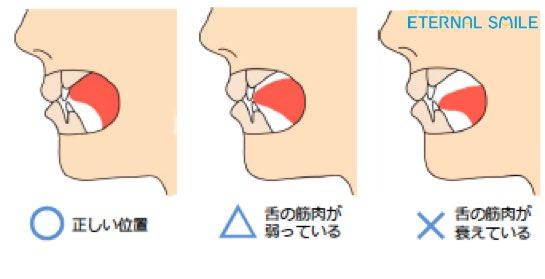 「舌の位置」もだが舌を含む筋力\u2026顎滑車の位置が下がる舌や口内粘膜を持ち上げる、様々な頭蓋から横隔膜までの筋作動に影響ほうれい線のでき方も