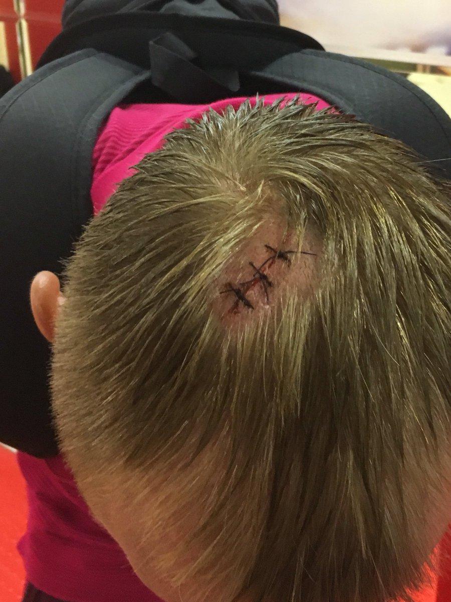 Глушакову наложили швы на голову после матча с «Арсеналом»