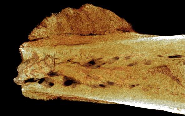 Earliest human cancer found in 1.7-million-year-old bone: https://t.co/urY9jdM1Px https://t.co/qlxr16OfRg