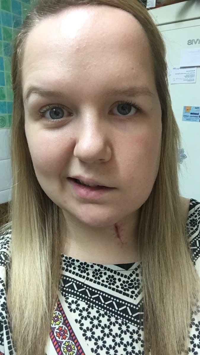 Teenage Cancer Trust On Twitter If Skin Cancer Happened To Me It Could Happen To Anyone Read Lauren S Cancer Experience Https T Co Mfcca5kd2t