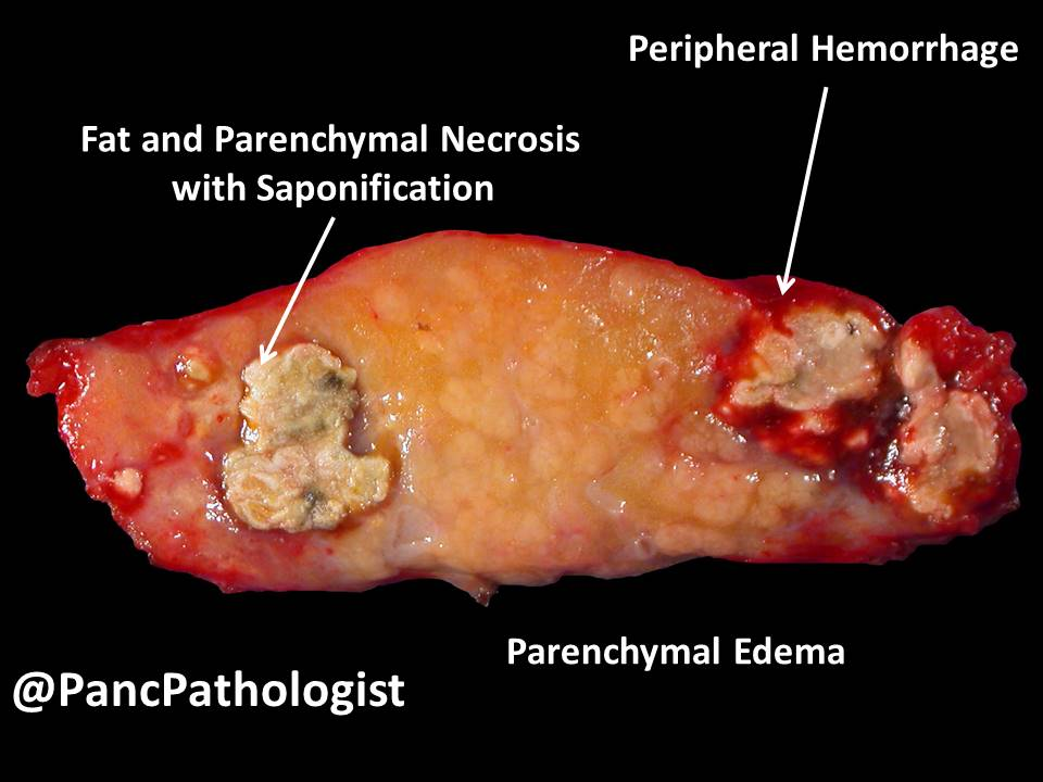 "Aatur Singhi, MD PhD on Twitter: ""The gross #pathology and ..."