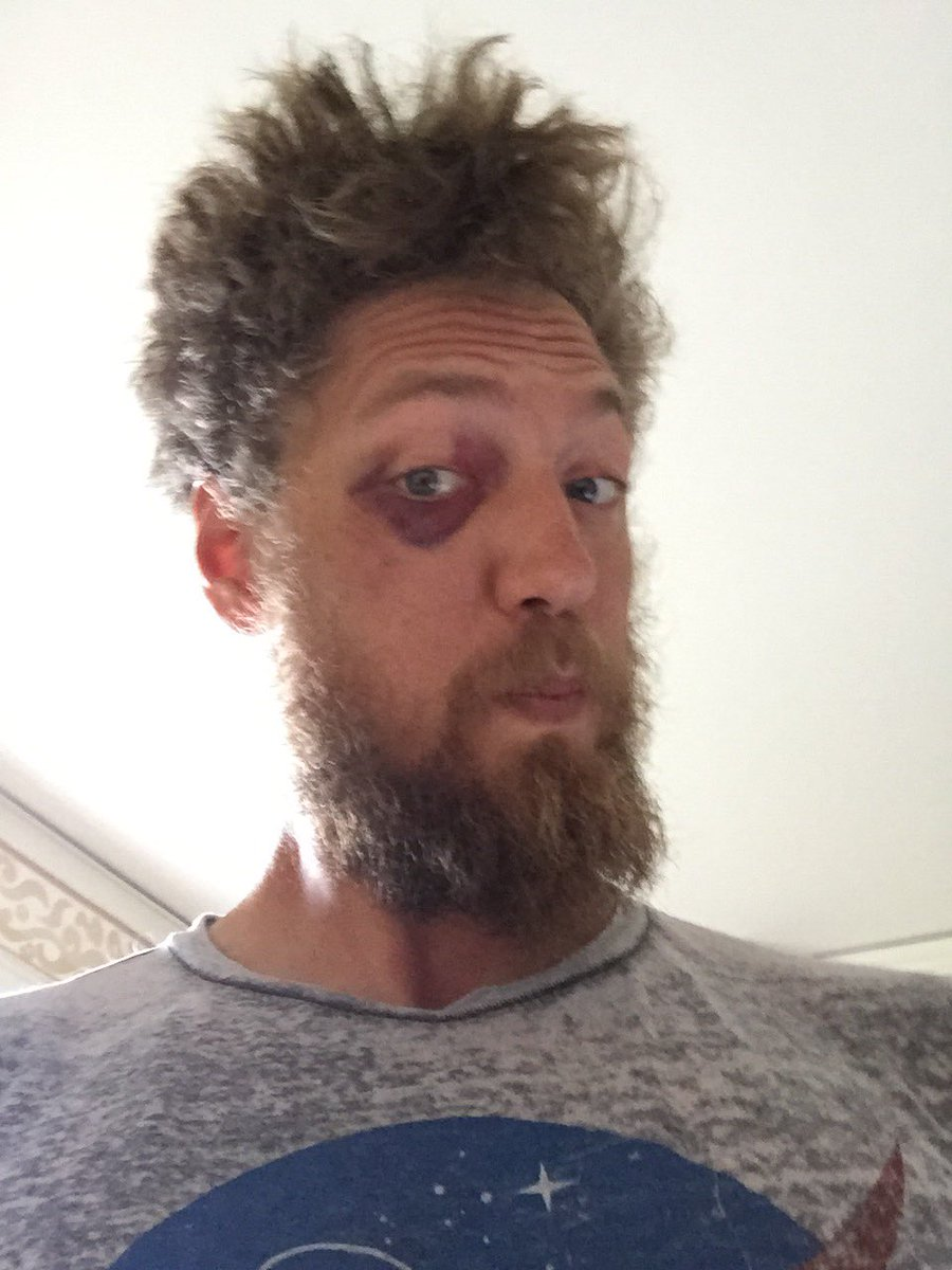 I forget that I have a black eye and I scare people https://t.co/ftG7nk6UpZ